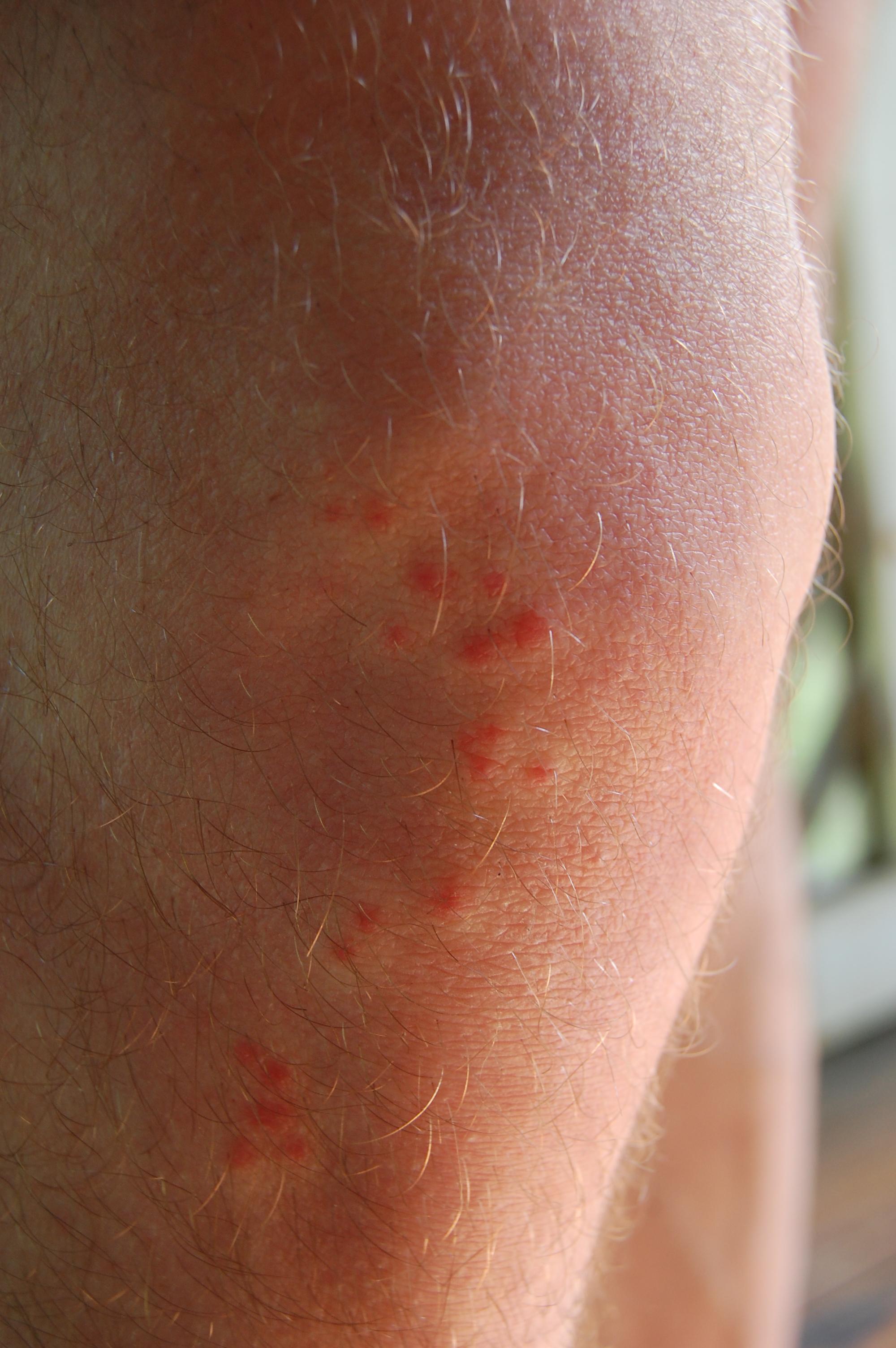 Petits points rouges sur le gland, symptomes et traitement